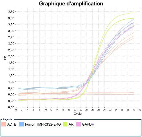 graphique d'amplification